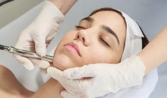 Microdermoabrasion tratamiento