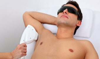 depilacion-laser-hombre