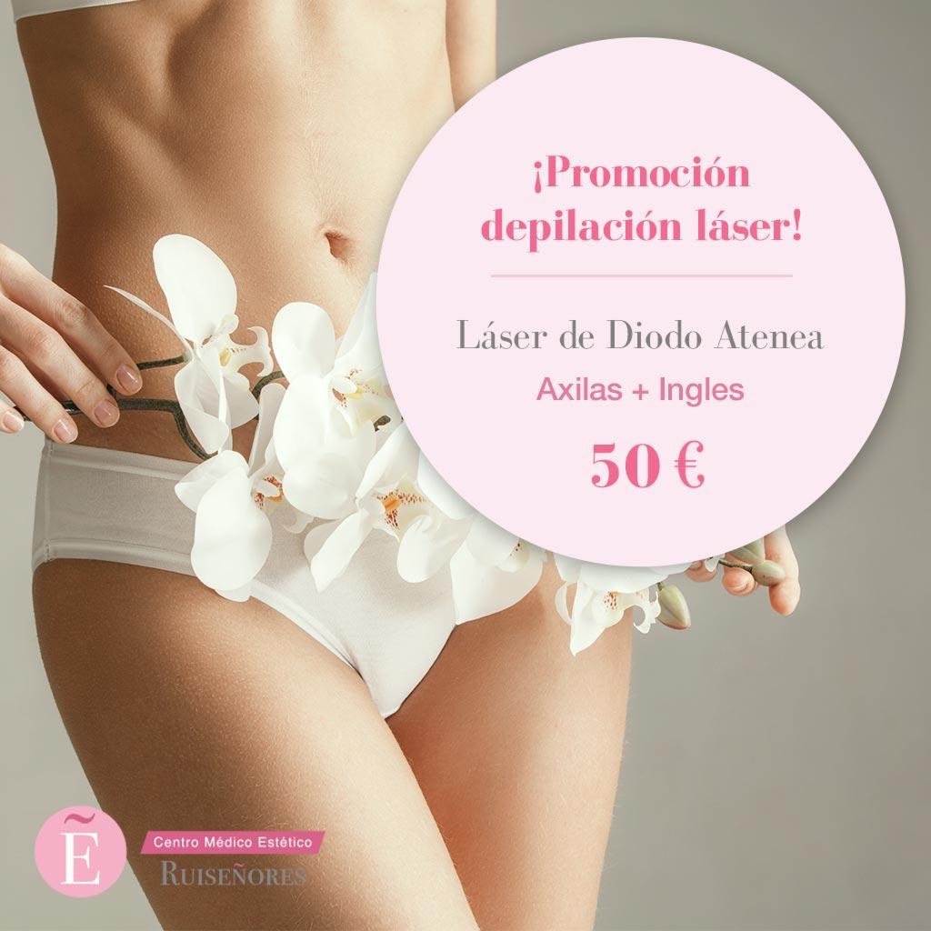 Precios depilación láser en Zaragoza