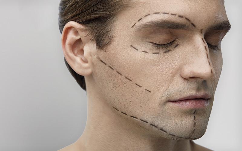 tratamientos-masculinos