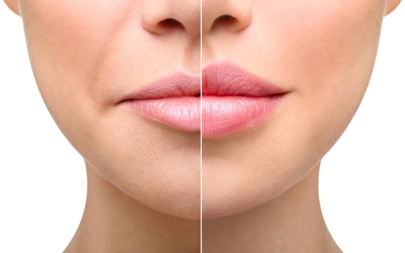 relleno-labios-zaragoza