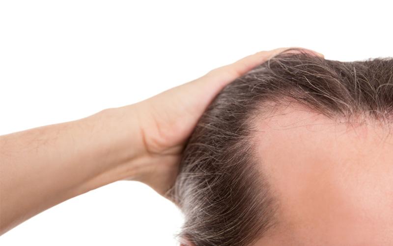 tratameinto-alopecia-zaragoza