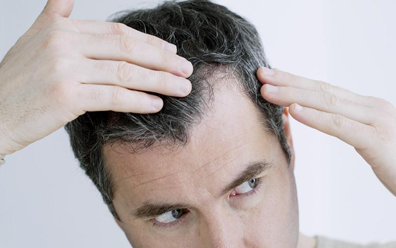 tratamiento-alopecia-hombres-zaragoza