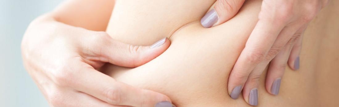 ¿Se puede eliminar la celulitis con presoterapia?