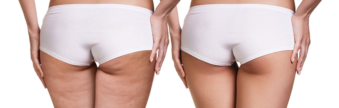 5 trucos para mantener la celulitis a raya
