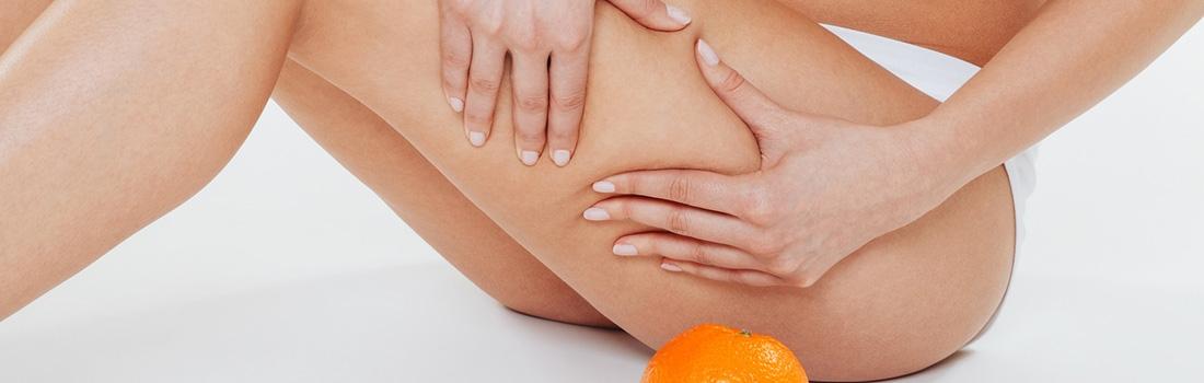 Consejos para prevenir la piel de naranja